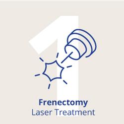 Tallahassee Pediatric Frenectomy